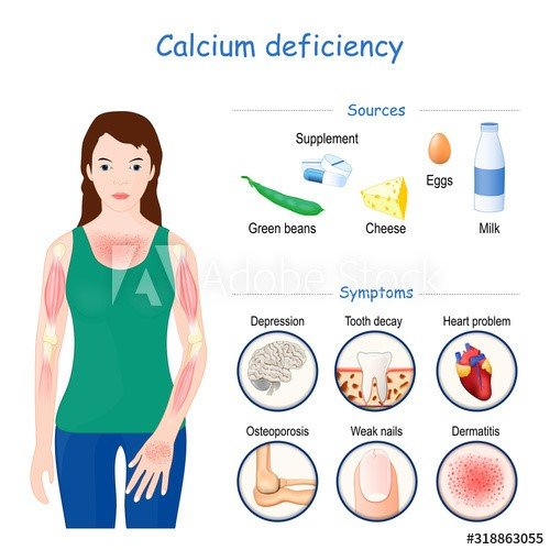 Fast&Up Calcium Deficiency Signs