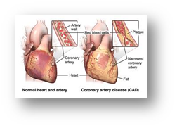 Fast&up Coronary Heart Disease